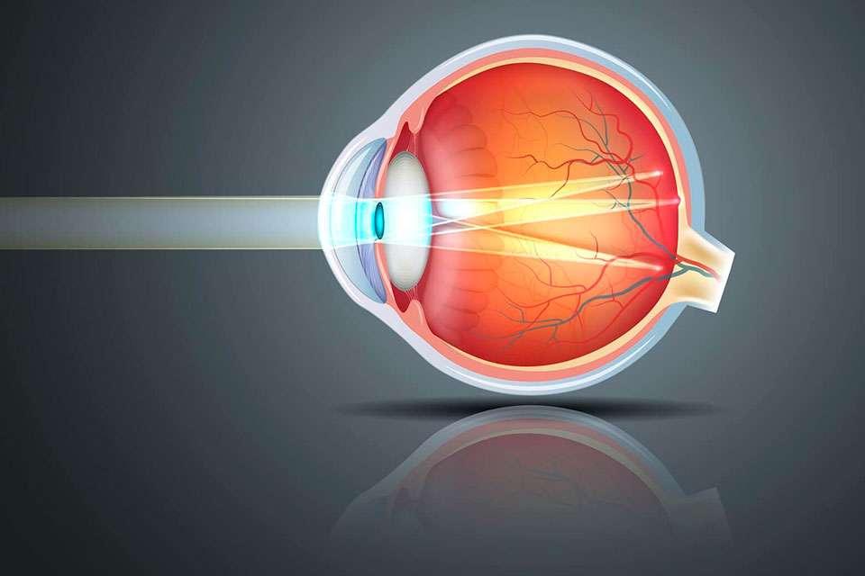¿Qué es el astigmatismo?...
